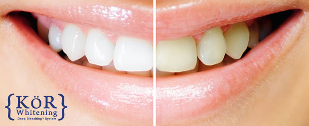 cosmetic-dental-services-kor-whitening
